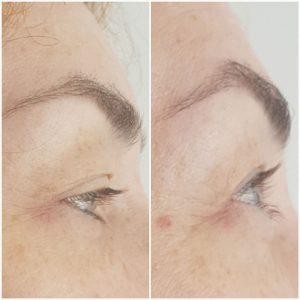 BEZOPERACYJNY-LIFTING-TWARZY-I-CIAŁA-PRZYKLAD-ZASTOSOWANIA-Medycyna-Estetyczna-i-Kosmetologia-SUPERMED-11