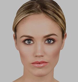 WOLUMETRIA–POPRAWA-OWALU-TWARZY-Kosmetologia-i-Medycyna-Estetyczna-SUPERMED