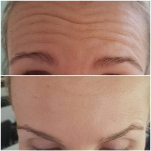botox krakow supermed