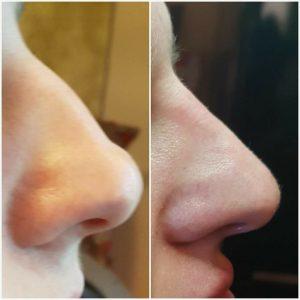 koretka ksztaltu nosa kwasem hialuronowym krakow supermed