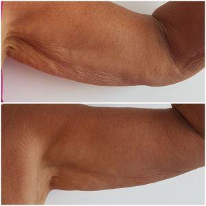 lifting ciala krakow supermed redukcja tkanki tluszczowej
