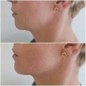 lifting twarzy hifu ultraskin krakow supermed