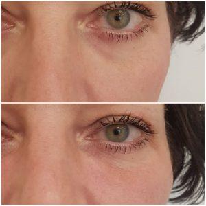 usuwanie-cieni-pod-oczami-krakow-supermed