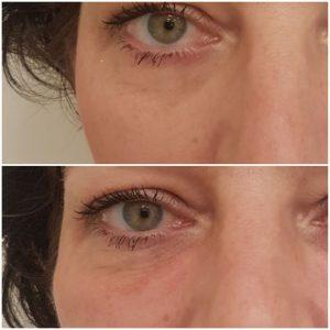 usuwanie-cieni-pod-oczami-krakow-supermed-zabieg